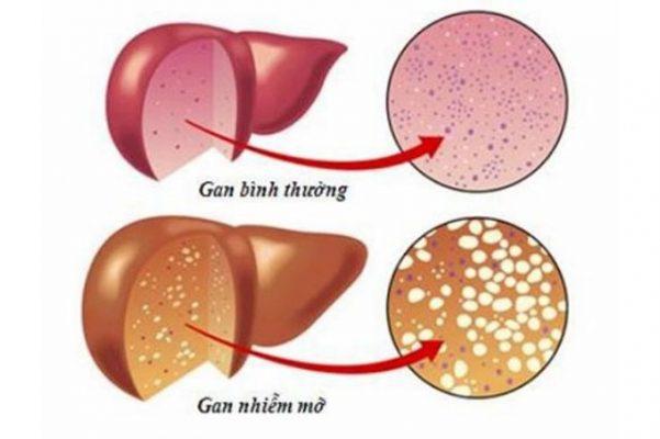 Bệnh gan nhiễm mỡ là gì – hiểu như thế nào cho đúng?