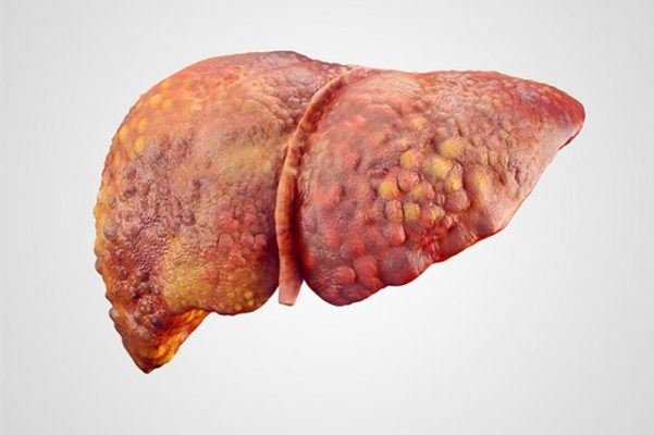 Một số bệnh lý về gan thường gặp