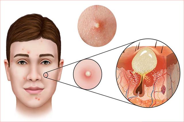 Mụn là một bệnh lý ảnh hưởng đến tuyến dầu của da