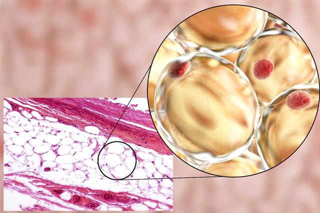 Tác hại của việc thừa mỡ nội tạng