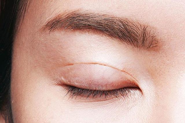 Mỡ thừa mí mắt trên là gì?