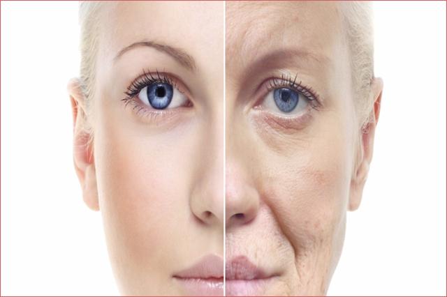 Những nguyên nhân dẫn đến mỡ mí mắt trên