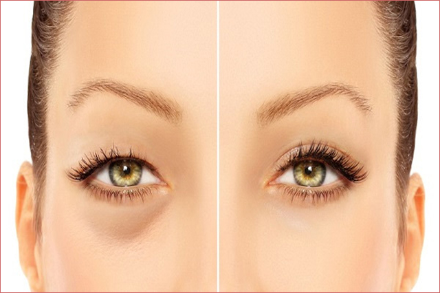 Bật mí cách loại bỏ mỡ thừa mí mắt hiệu quả nhất hiện nay